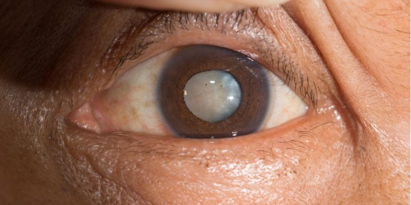 Understanding robotic cataract surgery