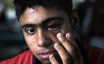 Kashmir, Kashmir conflict, kashmir pellet, pellet in kashmir