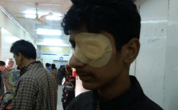 shopian gunfight, injured