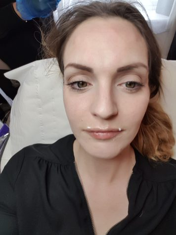 Lip filler and Botox review- hampton Aesthetic clinic Revolax