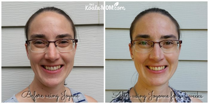 Before and after pictures from using the Joyome Essentials Skincare collection.