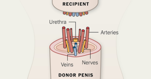 penis-transplant-diagram-Sized