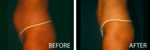 tumescent liposuction before and after