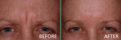 Botox indianapolis