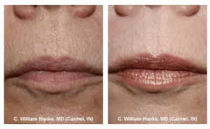 cosmetic dermatology before and after treatment