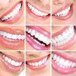 Different Types of Cosmetic Dental Care Services
