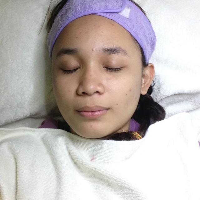 Shameless selfie during the treatment.