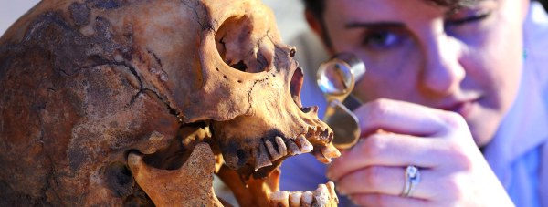 Saxon skull uncovered in the Lincoln Castle Revealed archaeological dig. Photo: LCC