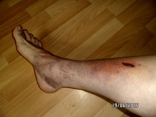 John suffered severe bruising and cuts.