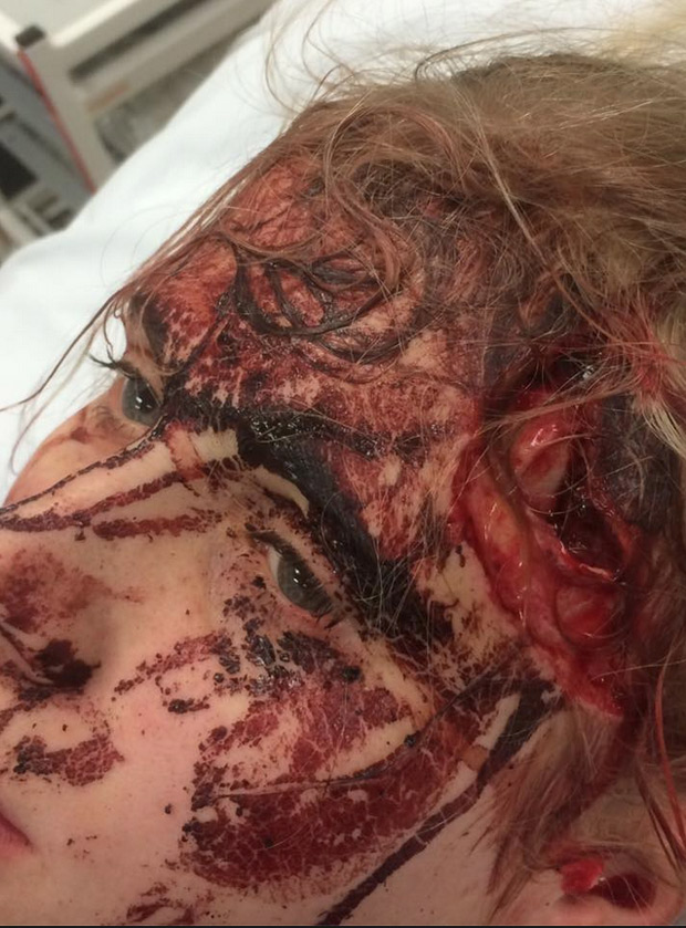 Lincoln Showjumper Suffers Horrific Facial Injuries After