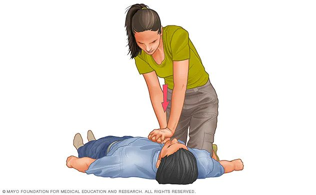 Woman in correct position for chest compressions with arms straight