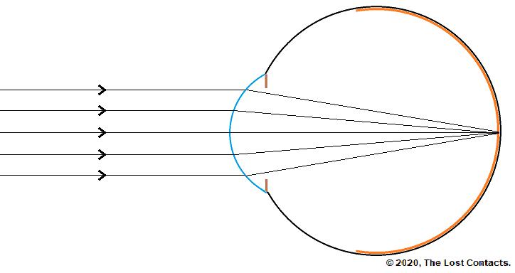 Ray Diagram of The Emmetropic Eye