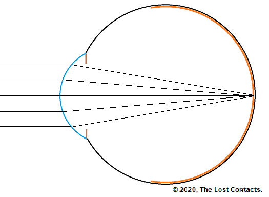 Ray Diagram of an Emmetropic Eye