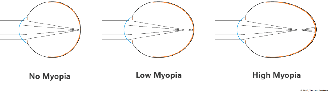 Ray Diagram of Different Stages of Myopia