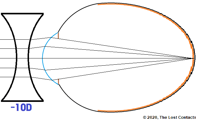 Ray Diagram of Myopic Eye Corrected With A Minus Lens