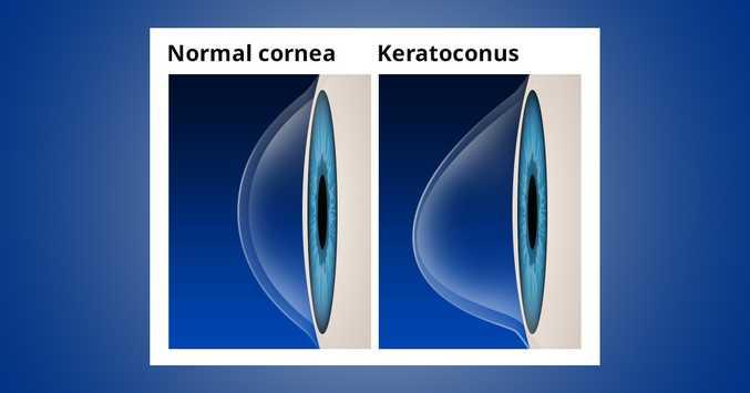 Normal Cornea VS Keratoconus