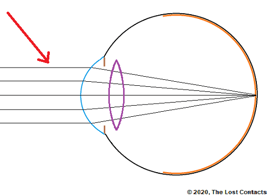 Ray diagram showing parallel light entering the eye