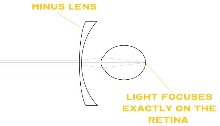 Light is focused on the retina - minus lens