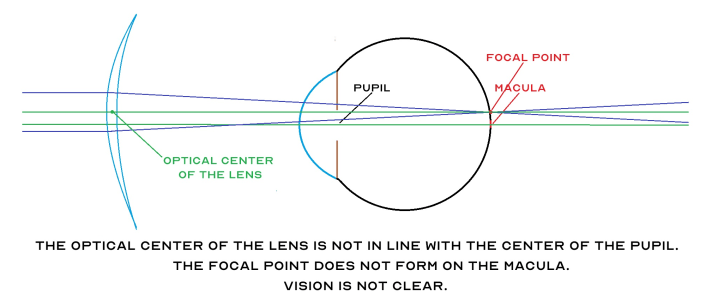 Diagram illustrating the focal point not on the macula
