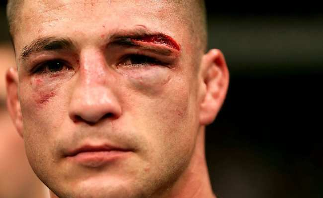 Watch An Incredible Choke Escape By Diego Sanchez At Ufc
