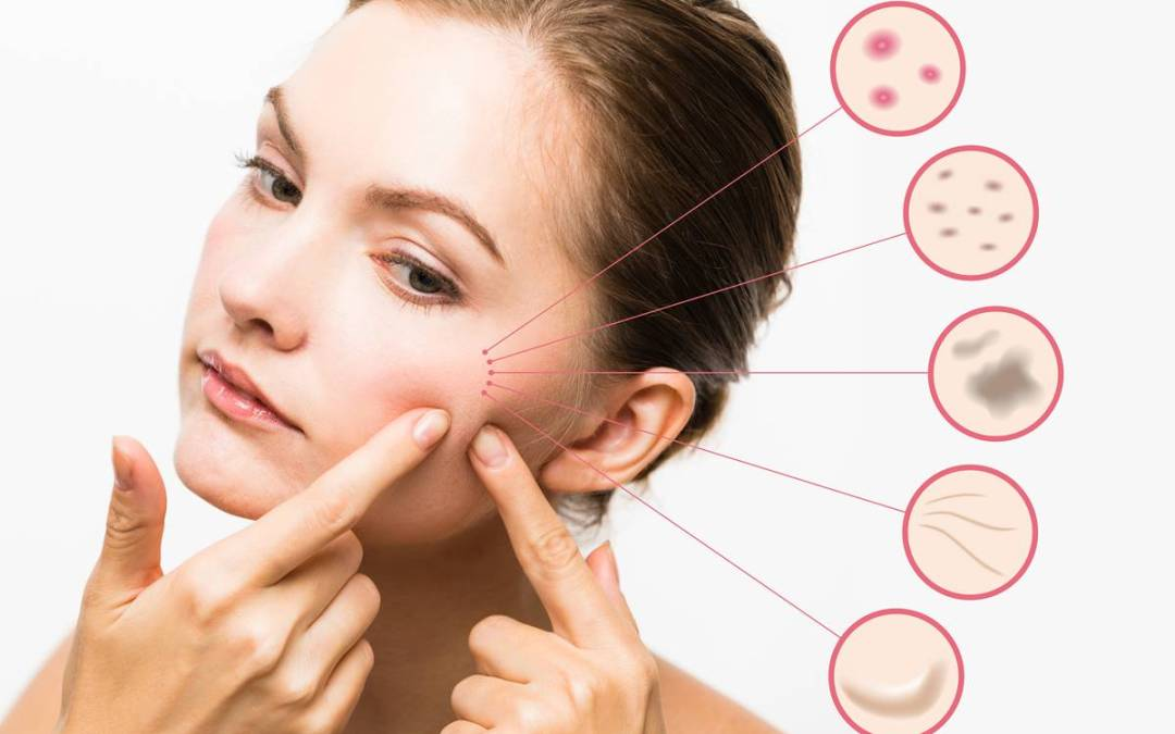 How Can Acne Be Treated?