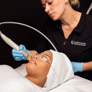 laser genesis treatment