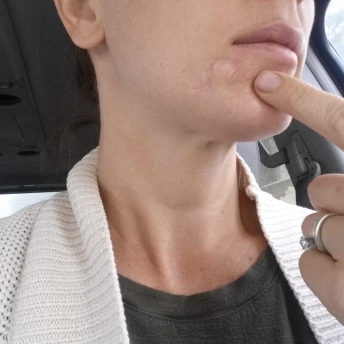 Kari Cummins skin cancer photo1
