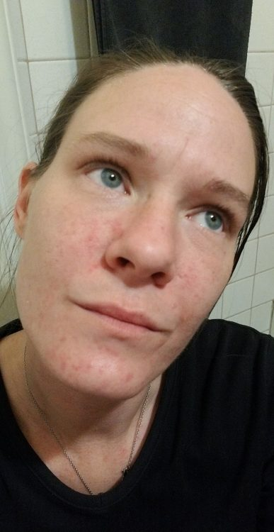 woman showing allergic reaction on face from mast cell activation disorder