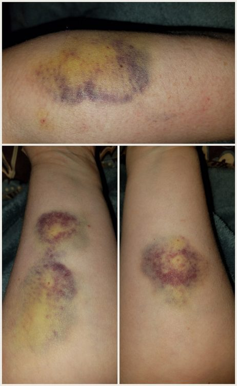 three photos of bruises on legs