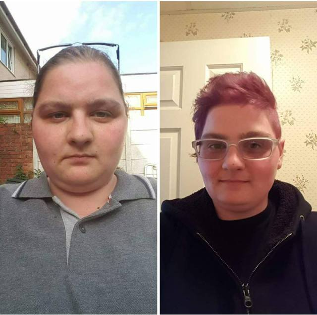 side by side photos of woman before and after weight fluctuations