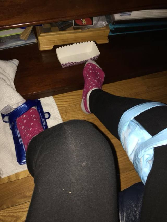 woman icing her legs and feet