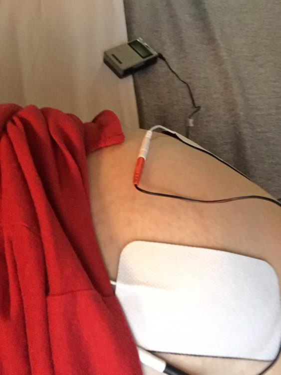 woman wearing red shirt with pads from a tens unit attached to her skin