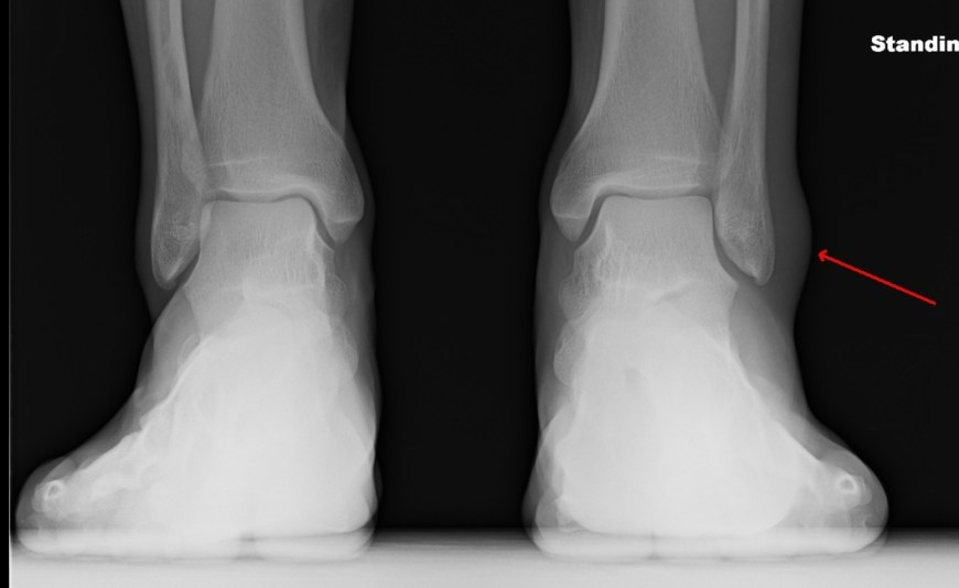 Radiographs taken 5 days later with lots of swelling.