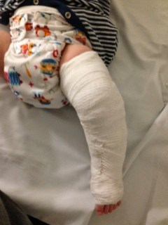 Fractured leg on baby