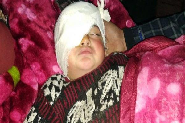 SHRC sends notices to DC, SSP Shopian over grave pellet injury to 20 month old Hiba