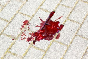 blood spatter, wrongful death, shooting, aaj, atla, legal news, ntl, trial lawyers