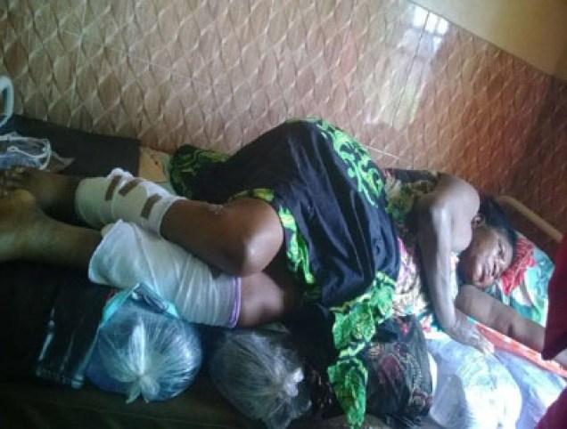Image result for Siblings die in kerosene explosion