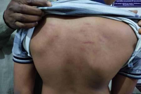 https://thenewse.com/wp-content/uploads/Injured-in-teacher-beating.jpg