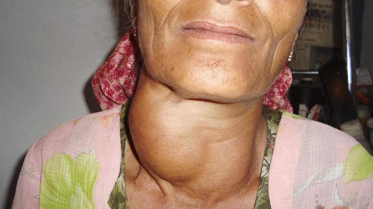 What Is Goiter? Symptoms, Causes and Treatment Without Surgery You may know the goiter or the lump in the neck, but what is the true definition of goiter, Symptoms, causes and Goiter Treatment without Surgery.