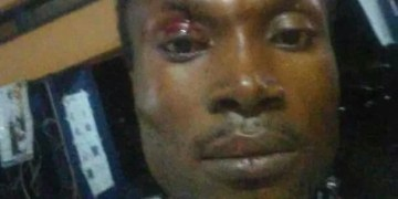 Ghana gays, Photos: Gay man left with severe injuries after attack