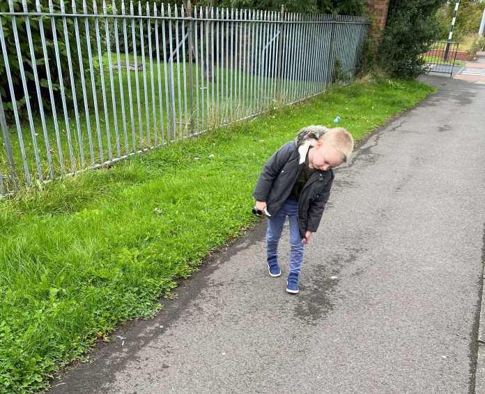 Alfie walking hoe with tired legs