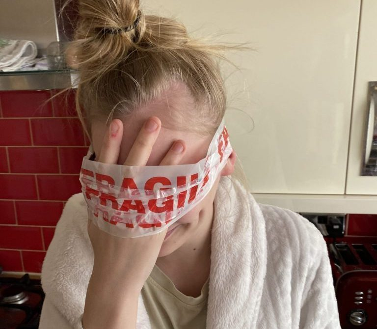 Chloe with fragile tape on her face