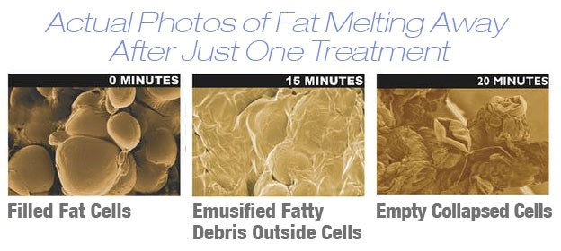 Fat loss Naples FL