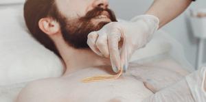 men hair removal Naples FL