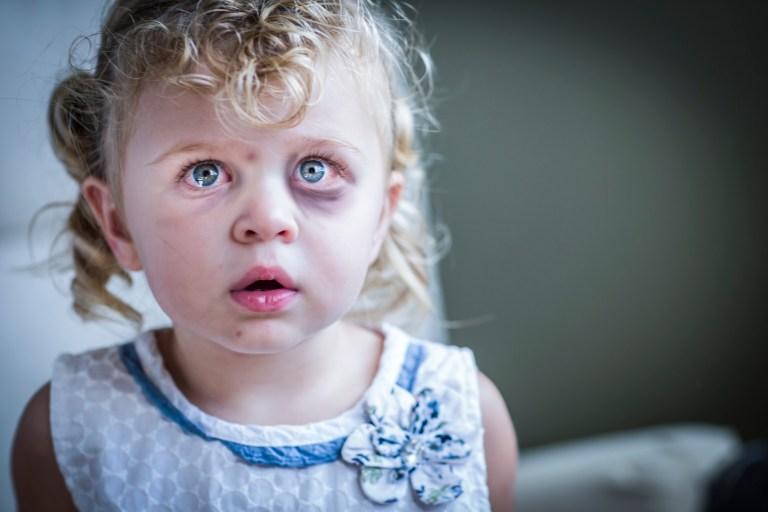 Child Abuse: An Unforgivable Crime