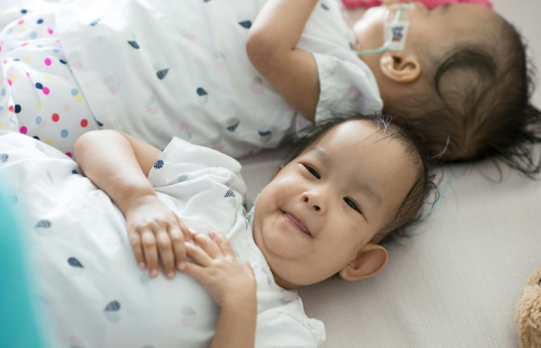 ex-conjoined twins- AFP
