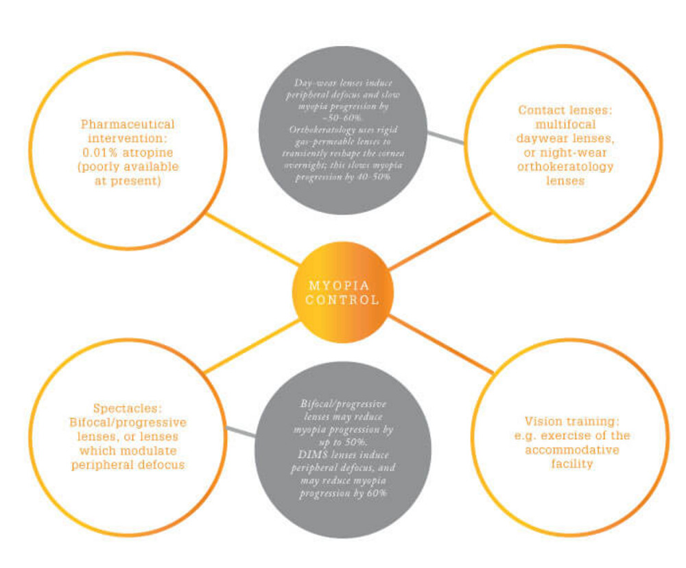 medium resolution of figure 1 major factors that contribute to myopia