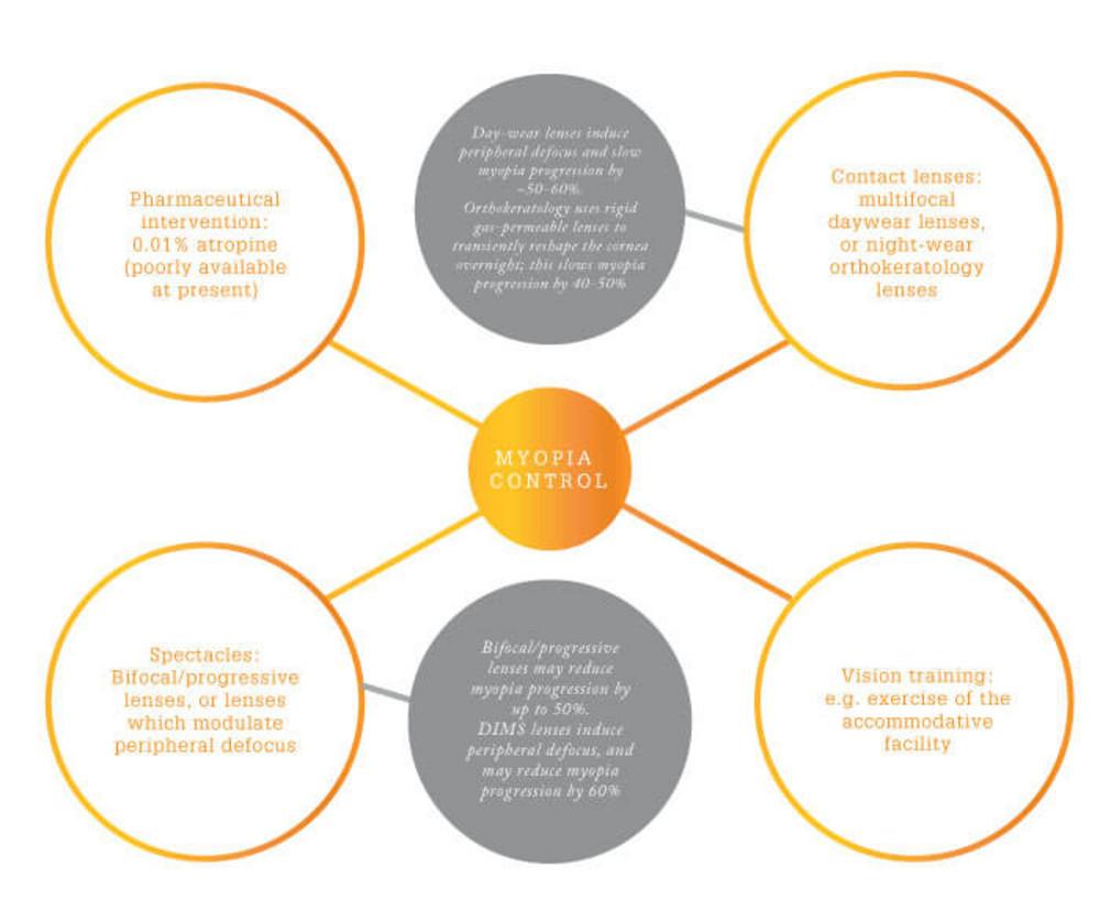 hight resolution of figure 1 major factors that contribute to myopia