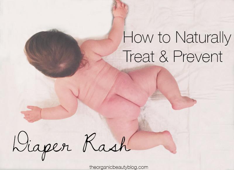 naturally-treat-diaper-rash