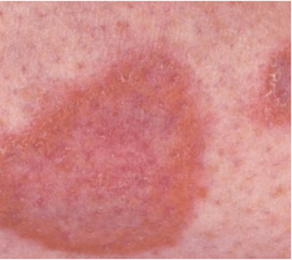 What Is Diabetic Dermopathy, More Than Just Dry Skin?